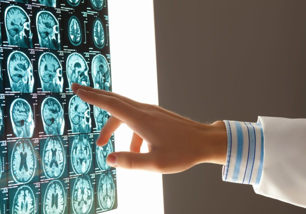 Future Loss from Traumatic Brain Injury